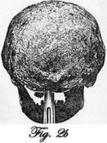 leibniz skull back